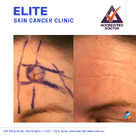 Elite-Skin-Cancer-Clinic-gallery1