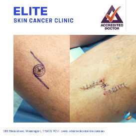 Elite-Skin-Cancer-Clinic-gallery10