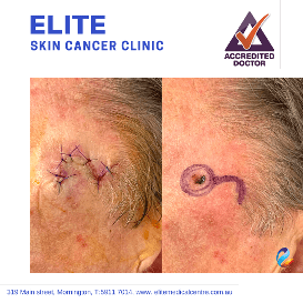 Elite-Skin-Cancer-Clinic-gallery2