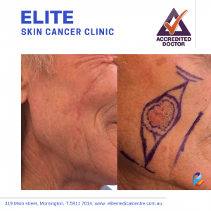 Elite-Skin-Cancer-Clinic-gallery3