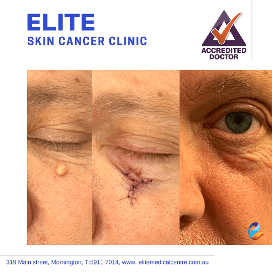 Elite-Skin-Cancer-Clinic-gallery9
