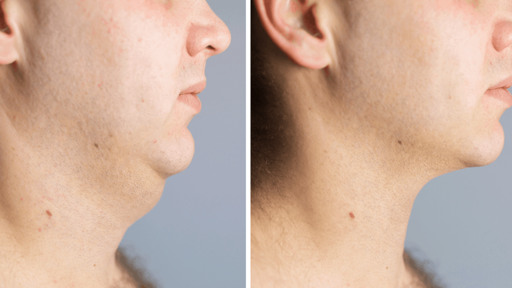 Before and After Double chin treatment to dissolve fat with Kybella (Belkyra)