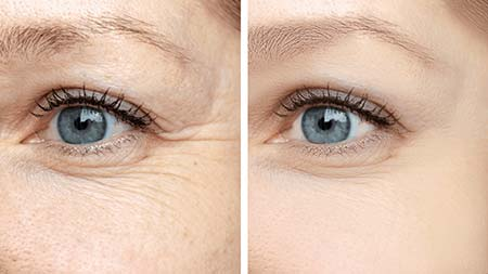 Closeup before and after anti wrinkle treatment for crows feet and lines underneath eyes
