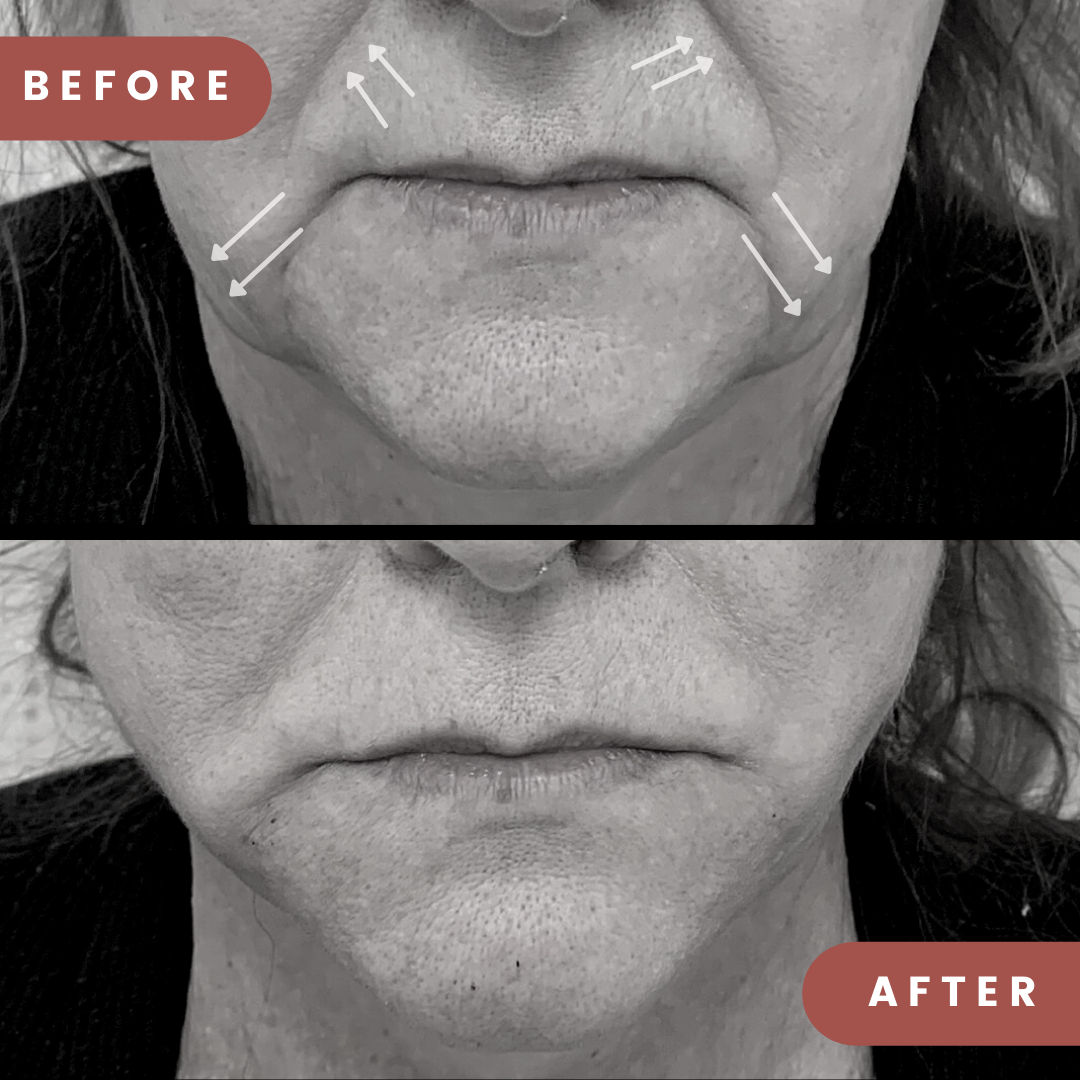 Before and After thread lift treatment. Nasolabial folds and Marionette lines show a visible reduction in appearance following thread lift procedure.