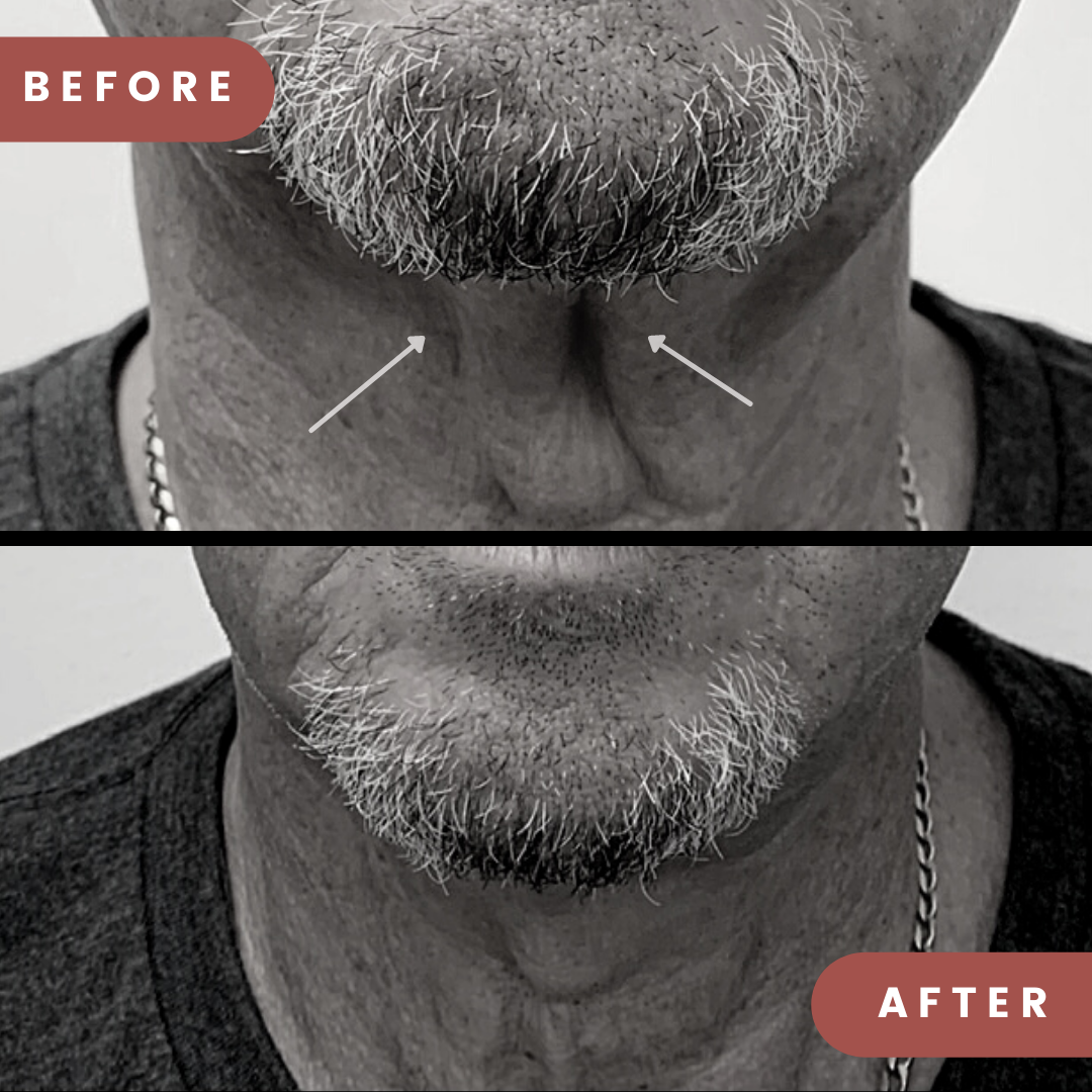 Before neck thread lift treatment showing sagging skin around throat - After neck thread lift treatment showing tightened skin around throat